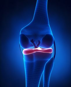 sports-knee-injury-3