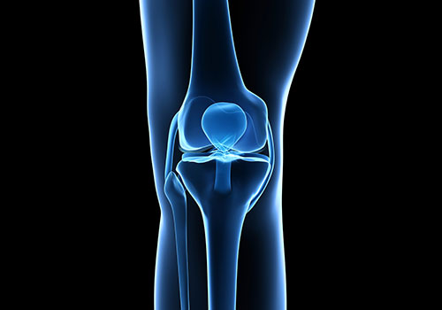 Knee Replacement Surgery | Total Knee Replacement Sydney